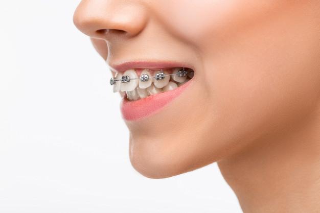 Brackets con cemento dental