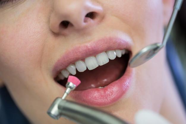 uso composites dentales